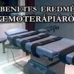 DÖBBENETES EREDMÉNY A KEMOTERÁPIÁRÓL