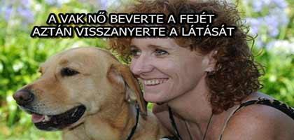 A VAK NŐ BEVERTE A FEJÉT, AZTÁN VISSZANYERTE A LÁTÁSÁT