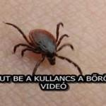 ÍGY JUT BE A KULLANCS A BŐRÖDBE! - VIDEÓ